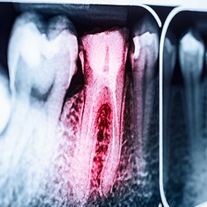 red tooth on x-ray