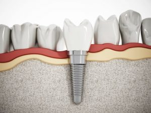 dental implant diagrams