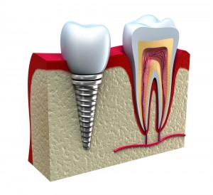Shutterstock Dental Implant
