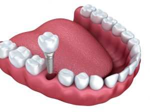 dental implants in Colorado Springs