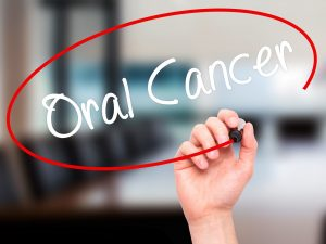 oral cancer circled in red