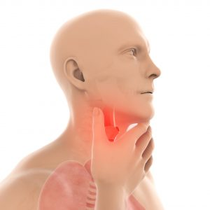 throat cancer concept